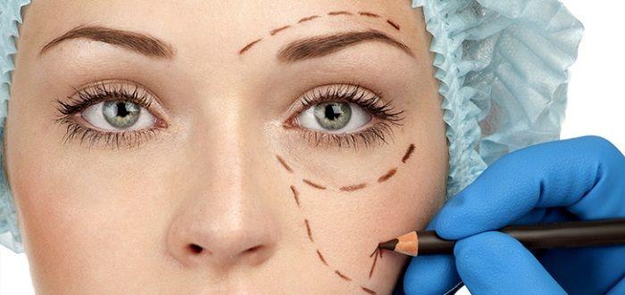 blefaroplastia-cirugia-de-parpados