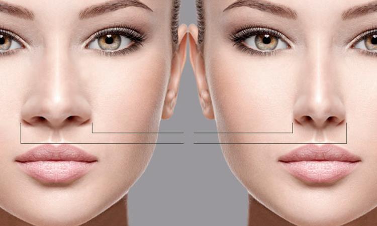 rinoplastia-cirugia-estetica
