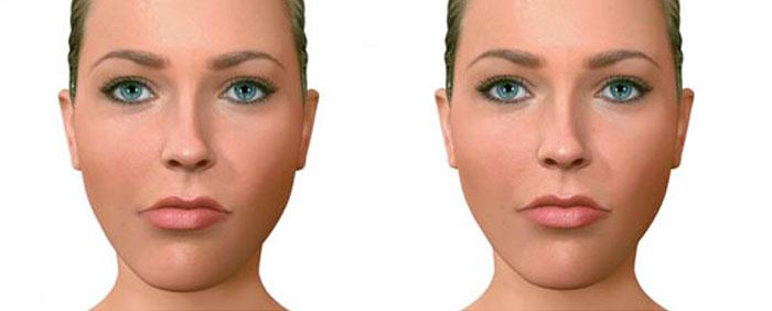 asimetria-facial-madrid