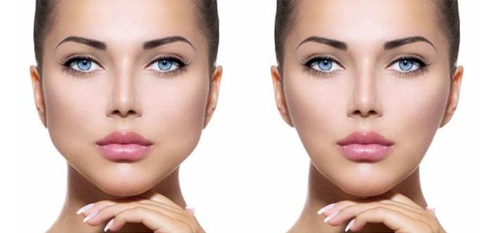 cirugia-bichectomia-adelgazamiento-facial