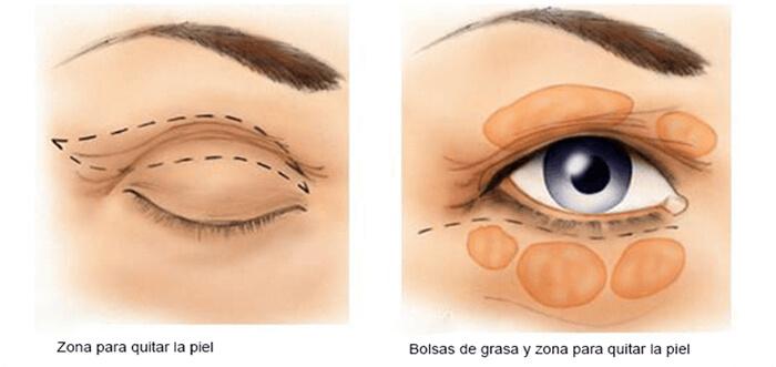 cirugia-de-parpados-blefaroplastia-madrid