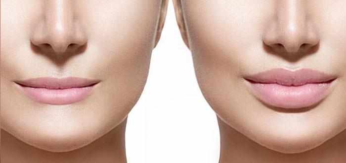 cirugia-elevacion-aumento-de-labios-madrid