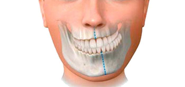 cirugia-ortognatica-asimetria-facial-madrid