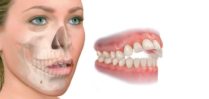 cirugia-ortognatica-mordida-abierta-madrid