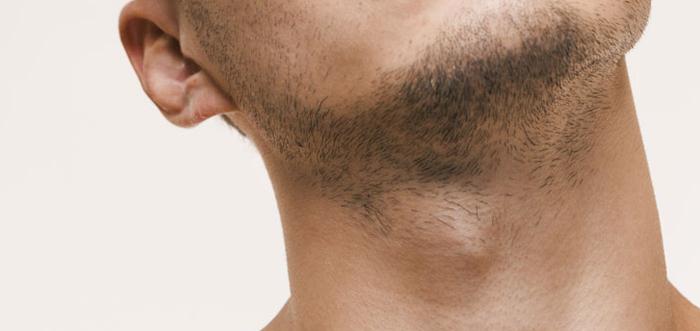 eliminacion-de-la-nuez-tiroplastia-madrid