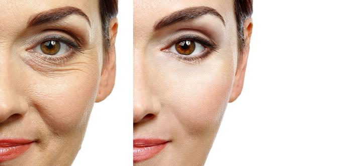 medicina-estetica-tratamientos-con-laser-plasmaterapia-laser-madrid