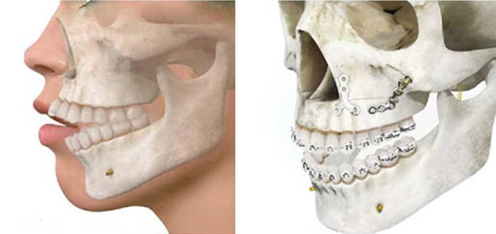 mordida-abierta-cirugia-ortognatica-madrid
