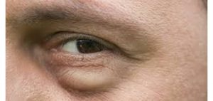por que se forman las bolsas en los ojos madrid