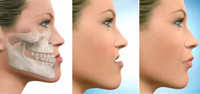 prognatismo-cirugia-mandibula-grande