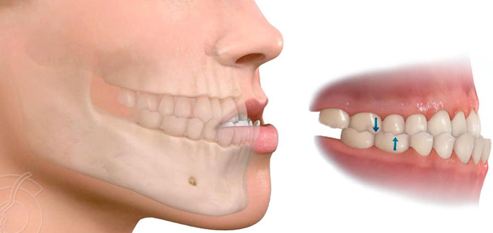 prognatismo-clase-iii-mandibula-grande