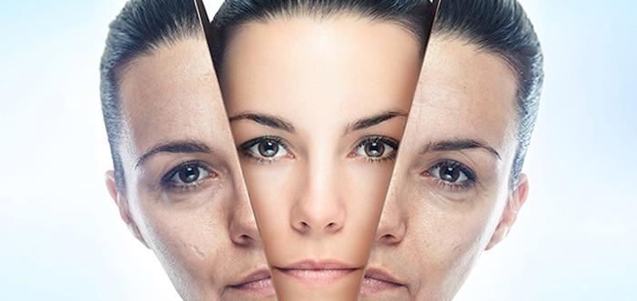 rejuvenecimiento-facial-con-laser-co2-madrid