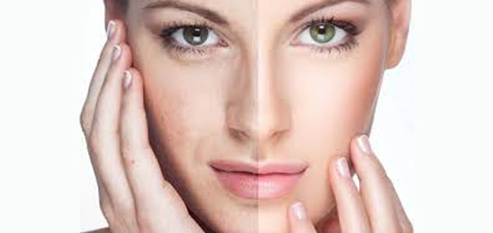 rejuvenecimiento-facial-con-laser-co2-resurfing-co2-madrid