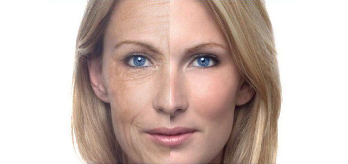 rejuvenecimiento-facial-o-resurfacing-con-laser-de-CO2-microfraccionado-madrid