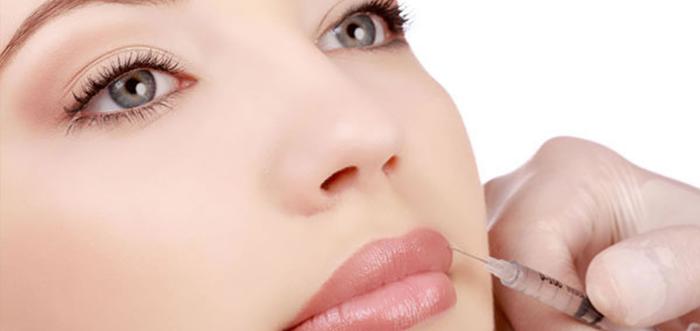 rellenos-faciales-aumento-de-labios-acido-hialuronico-madrid