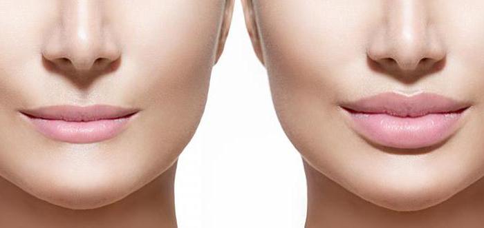 rellenos-faciales-aumento-de-labios-madrid