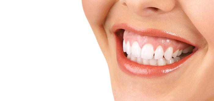sonrisa-gingival-cirugia-ortognatica