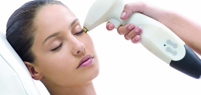 tratamiento-de-las-ojeras-con-laser-madrid