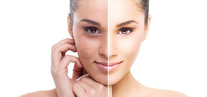 tratamientos-con-laser-co2-resurfing-rejuvenecimiento-facial-madrid
