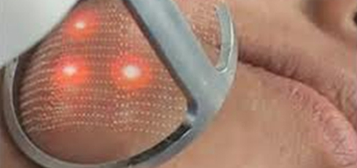 tratamientos-con-laser-rejuvenecimiento-facial-co2-resurfing-madrid
